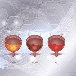 تغير لون البول الدم البولي الاحمر بول احمر دم في البول