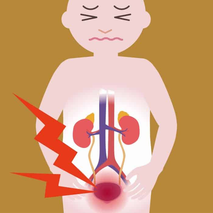 طبيب-المثانة-العصبية-تكرار-البول-الم-البطن-التهاب-المثانة-دكتور