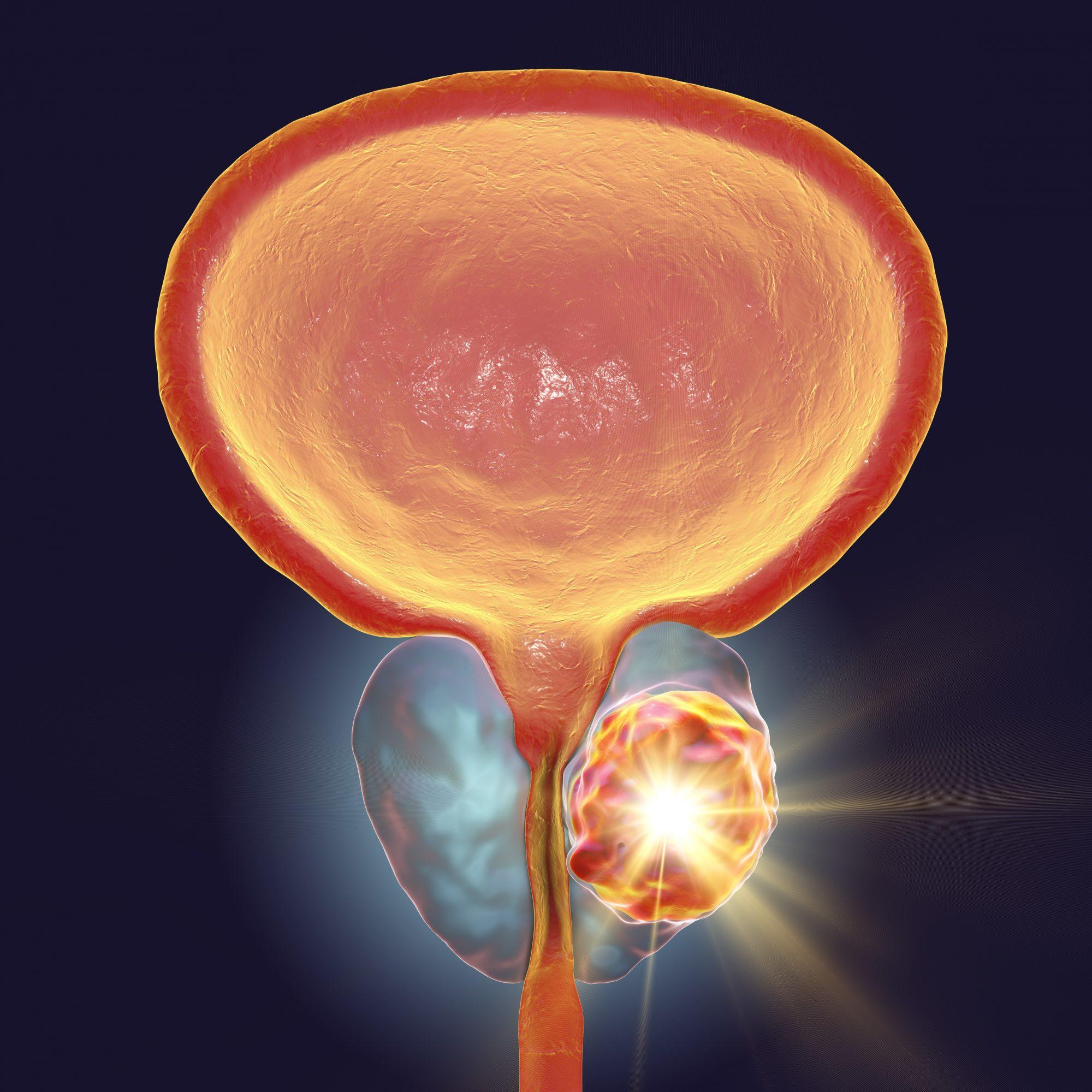 افضل-دكتور-بروستات-في-الاردن-سرطان-البروستات-عمان-التهاب-البروستاتا-احتقان